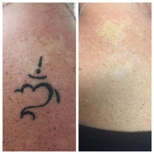 tattoo-removal_-2