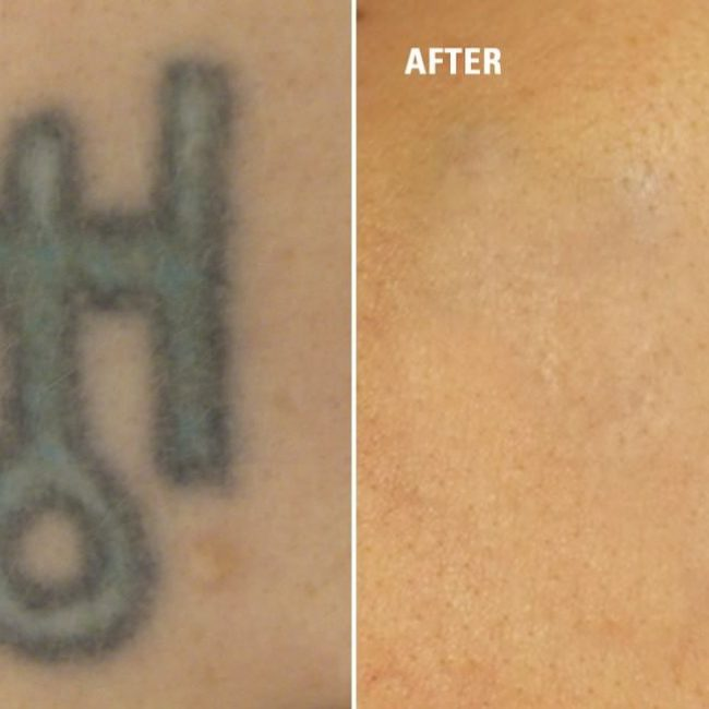 tattoo-removal_-3