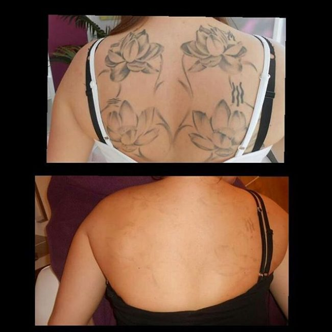 tattoo-removal_-4