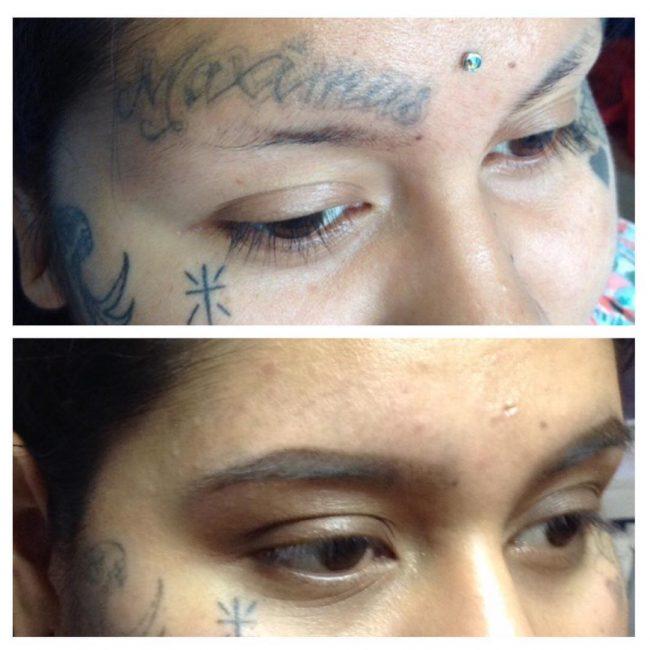 tattoo-removal_-5