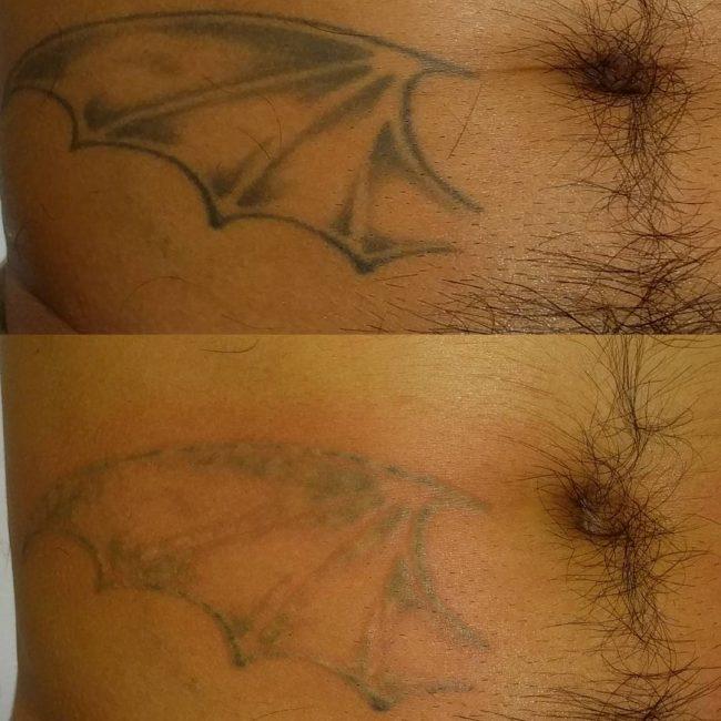 tattoo-removal_-6