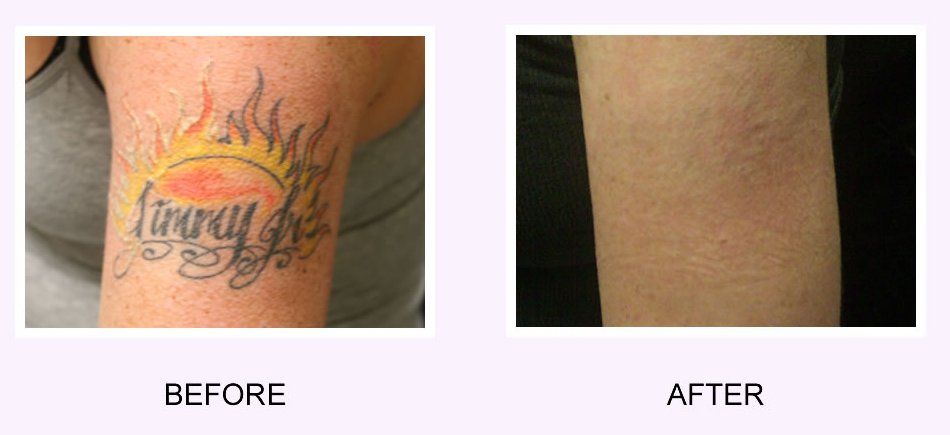 Tattoo Removal Before and After: How to Get Rid of Tattoo? (2019)