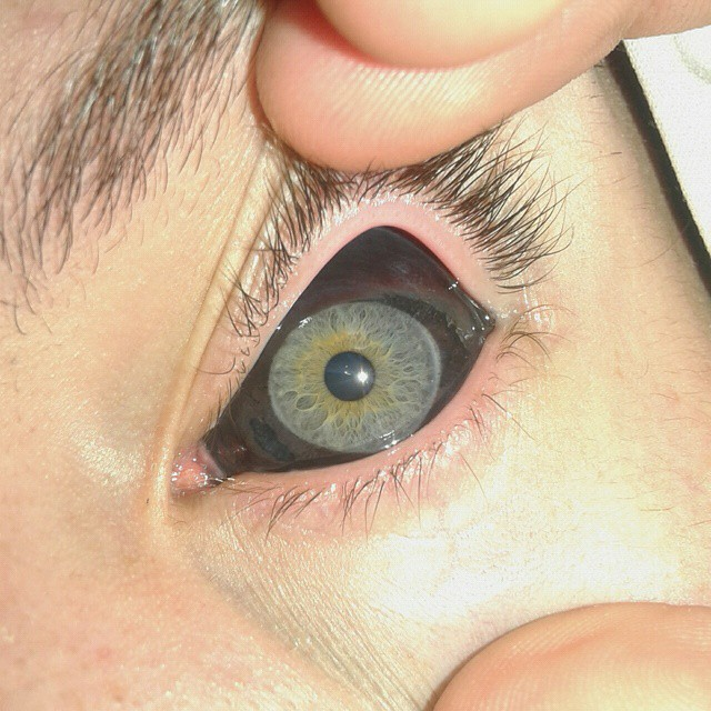 eyeball-tattoo (10)