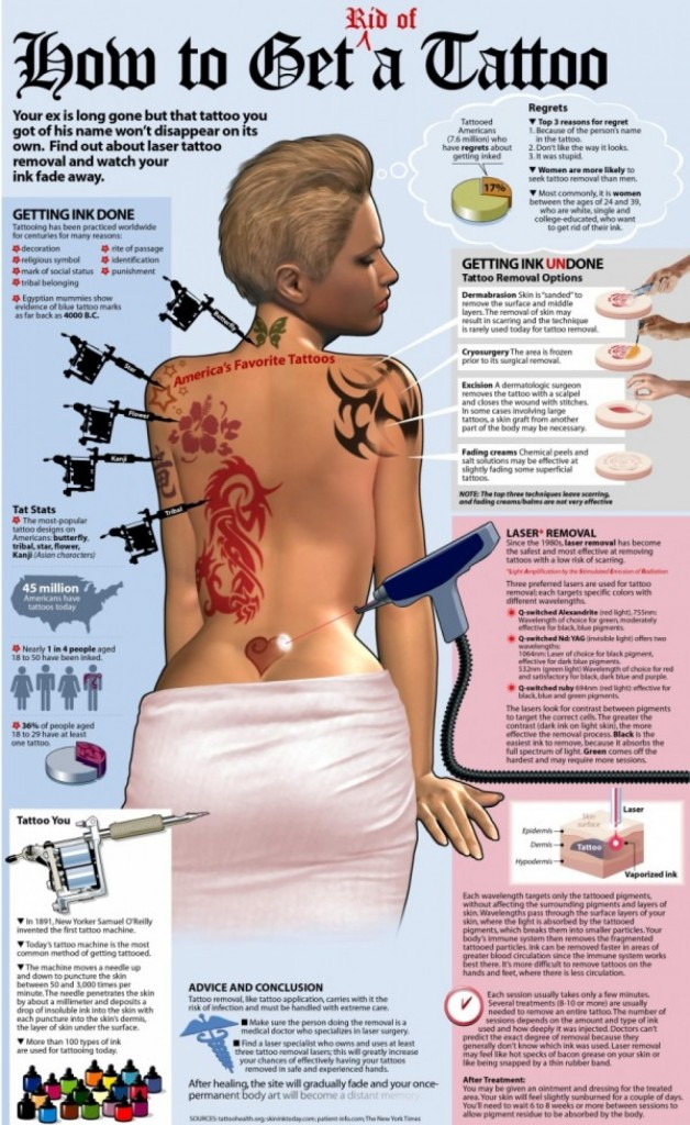 tattoo removal before and after how to get rid of tattoo