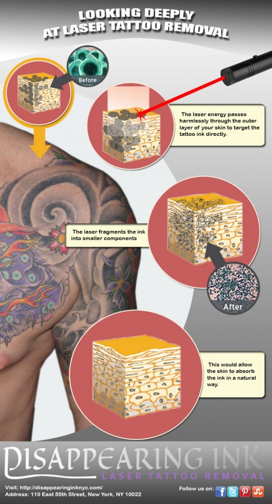 looking-deeply-at-laser-tattoo-removal_52e5c3c8777f2_w1500