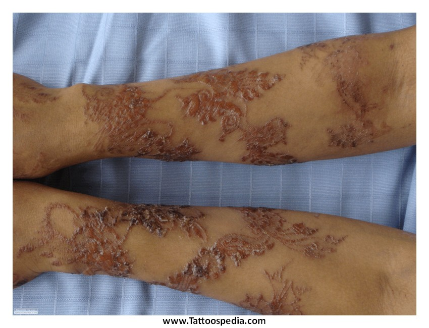 Henna Tattoo Infection: 6 Steps How To Treat An Infected Tattoo