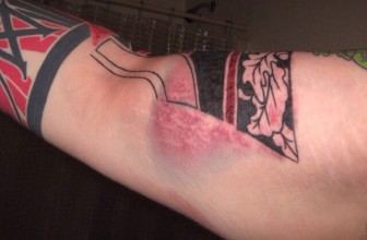 6 Steps How to Treat an Infected Tattoo – Take in Consideration (2019)