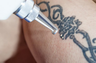 The best place for tattoo removal in Philadelphia – Learn more